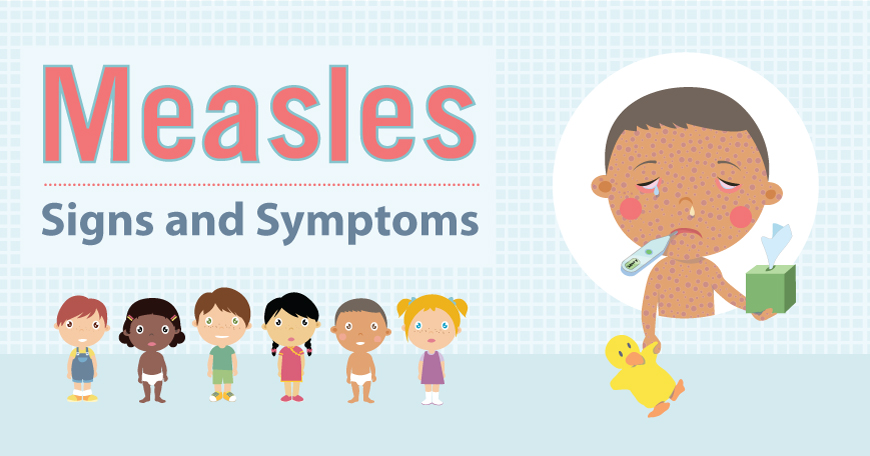 Nationwide Measles Outbreak Concerns County Health Officials